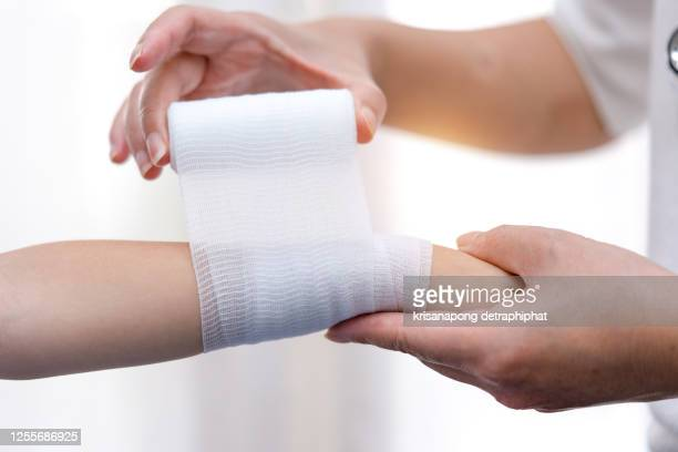 broken arm,doctor treating patients,arm pain - bandage stock pictures, royalty-free photos & images