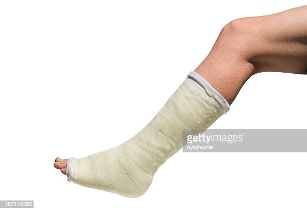 Broken Foot in cast isolated against white background