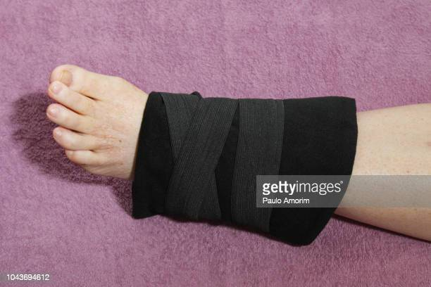 broken foot recovery - bones stock photos and pictures