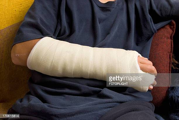 broken hand - human arm stockfoto's en -beelden