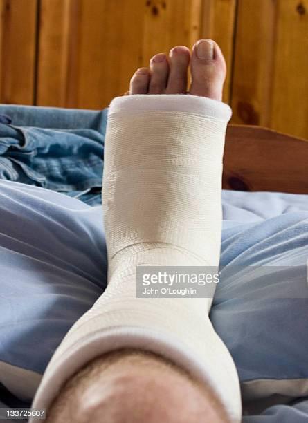 Broken left foot in plaster