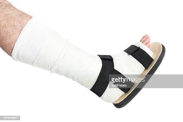 Broken Leg in Cast, Isolated on White