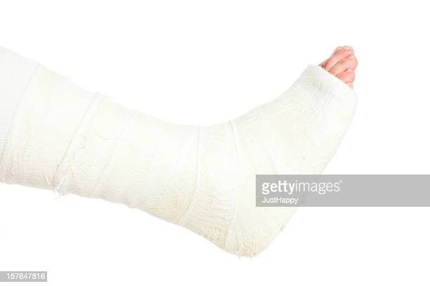 broken leg in cast, isolated on white - cast colors for broken bones stock pictures, royalty-free photos & images