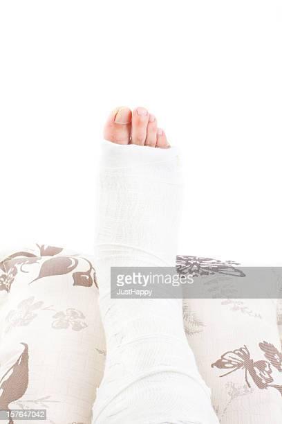 gebrochenes bein in gusseisen - gipsbein stock-fotos und bilder