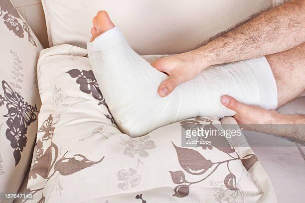 perna quebrada do cast - perna humana - fotografias e filmes do acervo