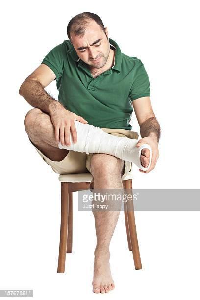 Broken Leg in Cast, White Background.