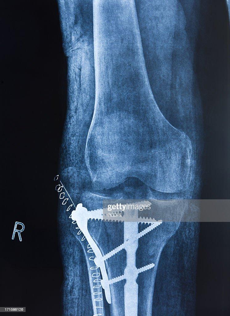 Broken leg : Stock Photo