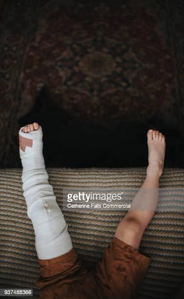 broken leg - femur fotografías e imágenes de stock