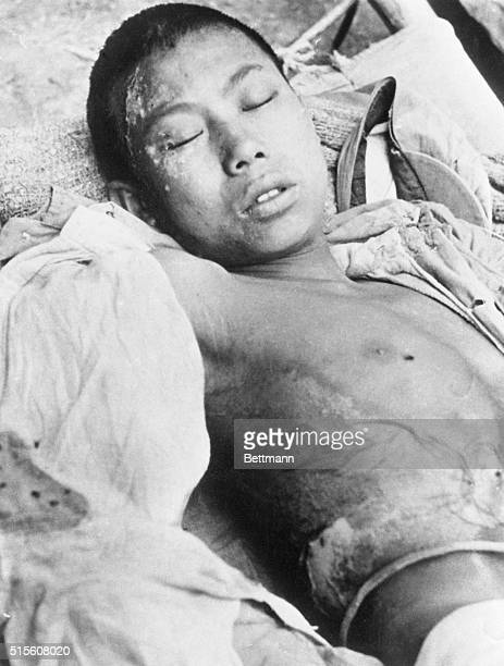 Broken like the Chinese hopes of victory at Ichang is this young Chinese machinegunner who was caught in the barrage of gas loosened by the...