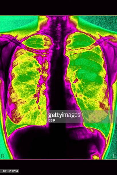Bronchial Cancer At The Level Of The Right Lung X Ray Of The Thorax In Front View