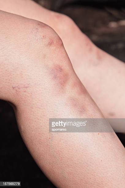 bruise injuries - bruise stock photos and pictures