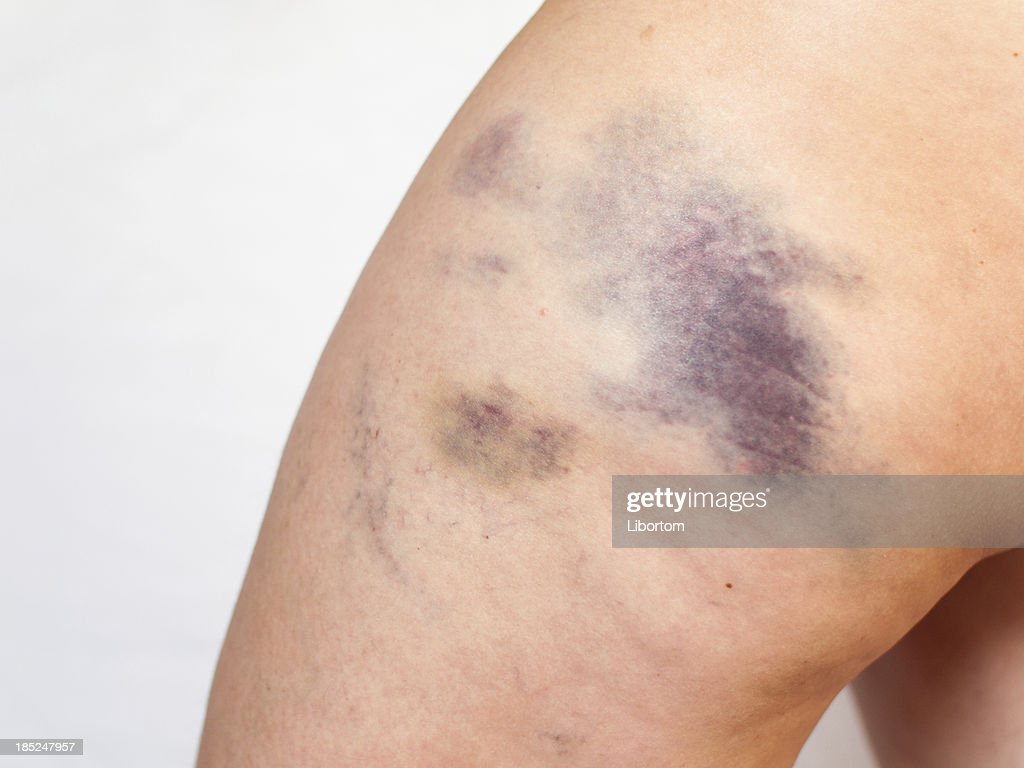 Bruise Stock Photos And Pictures