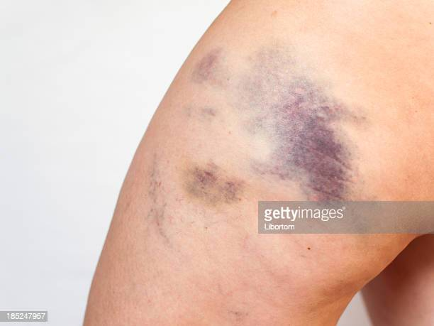 bruise - bruise stock photos and pictures