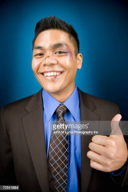 Bruised Asian businessman smiling and giving thumbs up