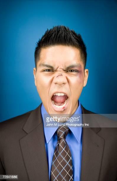 bruised asian businessman yelling - hombre golpeado fotografías e imágenes de stock