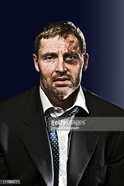 bruised businessman looking to camera - beaten stock photos and pictures