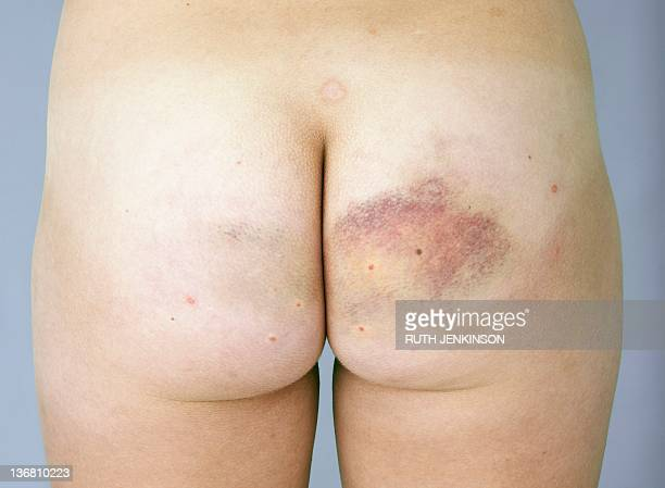 bruised buttock - adolescents nus - fotografias e filmes do acervo