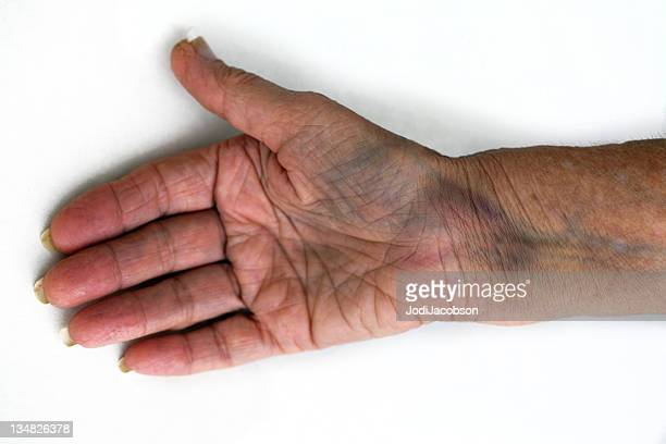 bruised fractured wrist - bruise stock photos and pictures