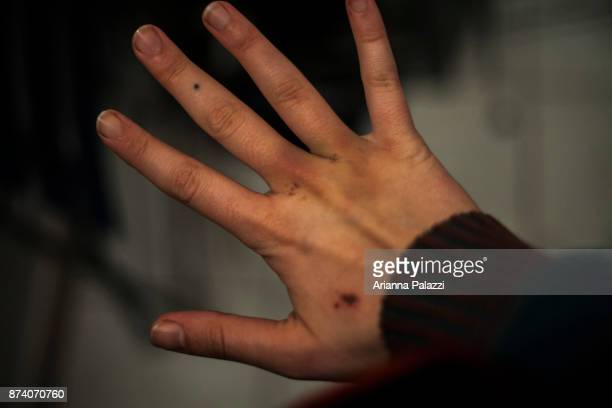 bruised hand - self harm stock photos and pictures