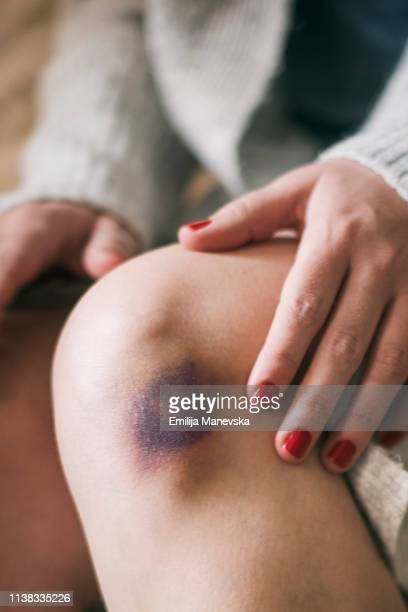 bruised knee - bruise stock pictures, royalty-free photos & images