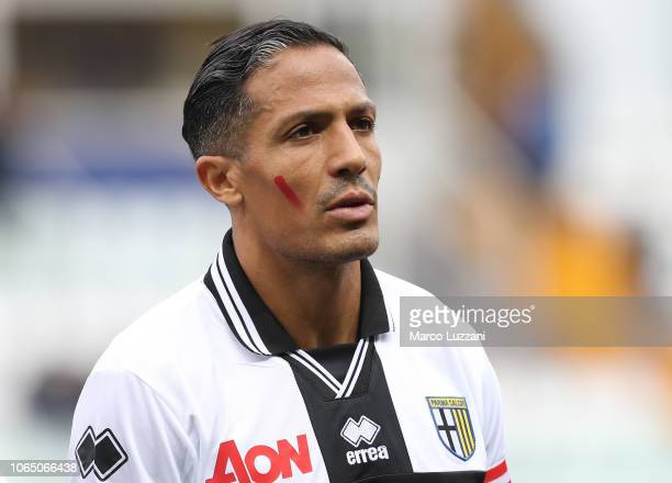 Bruno Alves of Parma Calcio show the red mark on the face to support the campaign Un Rosso Alla Violenza before the Serie A match between Parma...