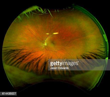 Ultra Wide Retinal Scan   Eye Care Technology   OPSM  Digital Retinal Scan