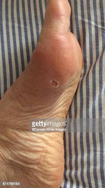 bunion operation - hallux valgus photos et images de collection