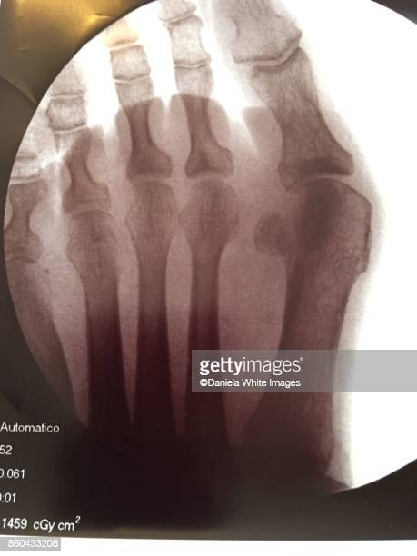 bunion - hallux valgus photos et images de collection