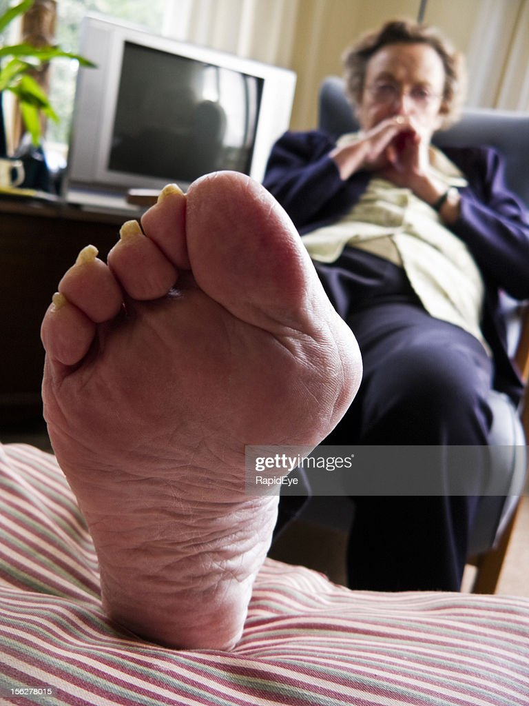 Bunion with gout : Stock Photo
