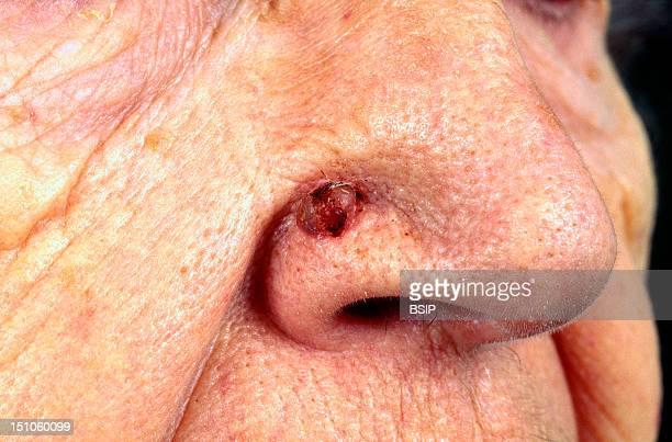 Burgeoning Basal Cell Epithelioma