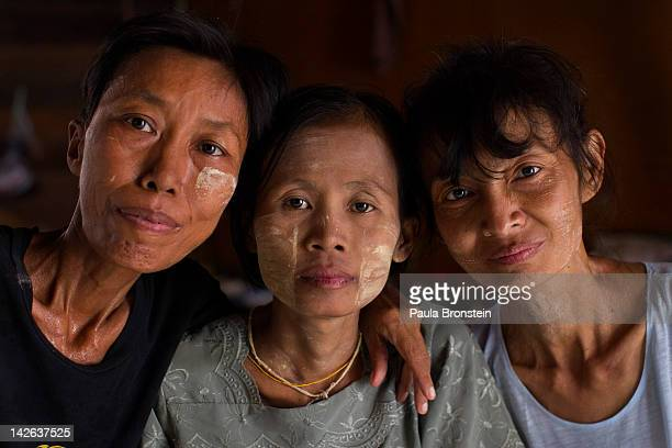 Burmese HIV AIDS patients from left Nyein Nyein khim Khim kyi and Ngwe win35 pose in a room for female patients at the HIVAIDS Care and Prevention...