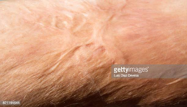 burn marks - burned body stock pictures, royalty-free photos & images