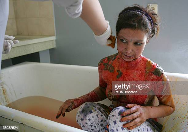 Burn victim Arezoo gets her burns washed at the Estiqlal Surgical hospital June 7 2005 in Kabul Afghanistan Contaminated fuel is causing very big...