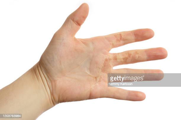 burned hand - burning stock pictures, royalty-free photos & images