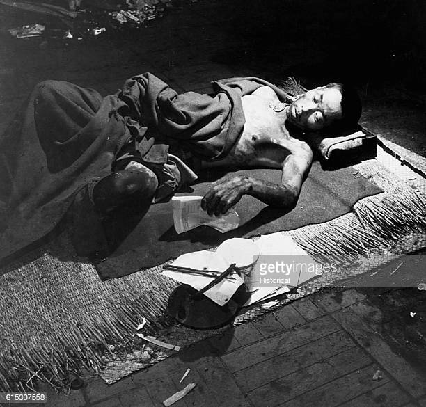 A burned victim of the atomic blast at Hiroshima lies in a bank building used as a hospital in September 1945