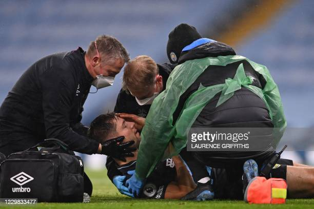 Burnley's English defender James Tarkowski is treated for a head injury during the English Premier League football match between Manchester City and...