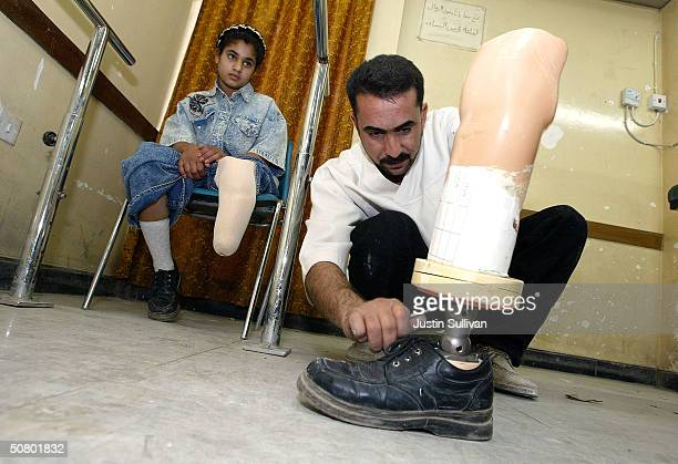 Bushra Rija Yason who lost her leg due to diabetes looks on as medical assistant Saadoon Mushin adjusts her new prosthetic leg at the Medical...