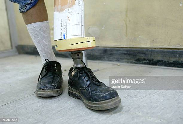 Bushra Rija Yason who lost her leg due to diabetes shows her newly fitted prosthetic leg as medical assitant Kadhim Hashim looks on at the Medical...