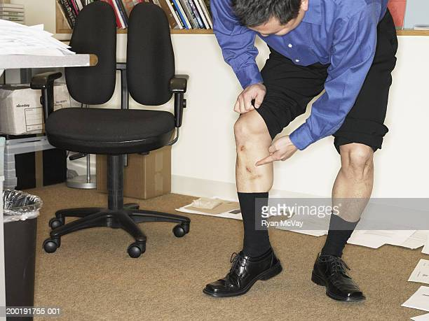 Businessman lifting pant leg, pointing at scar on shin