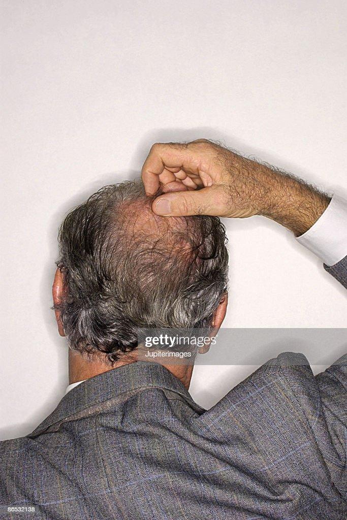 Businessman scratching head : Stock Photo