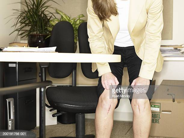 Businesswoman lifting pant legs, exposing scars on knees, mid section
