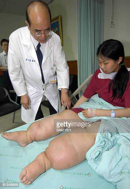 ELEPHANTIASIS by Benjamin Yeh In this picture taken on June 12 2008 Wang Cheng a Chinese woman from Xuzhou a city in the eastern Chinese province of...