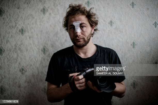 Year-old Syrian freelance photographer Ameer al-Halbi, injured during clashes in a demonstration against the 'global security' draft law, poses with...