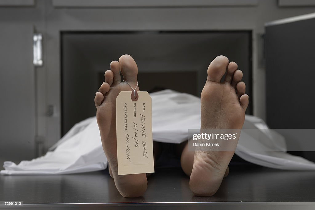 """Cadaver on autopsy table, label tied to toe, close-up"" : Stock Photo"