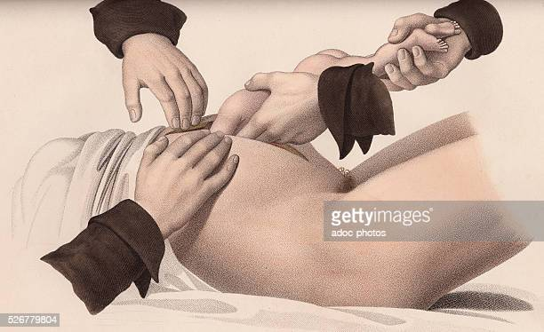 Caesarean Plate from the 'Nouvelles d��monstrations d'accouchements' by JacquesPierre Maygrier Second edition 1840