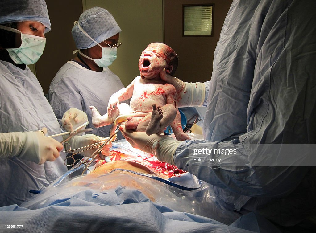 Caesarian baby's first breath : Stock Photo