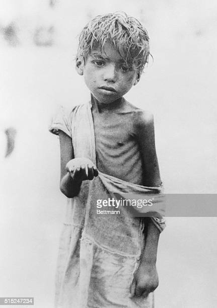 Calcutta: Pitiful Skeleton Of a Child Begging For Food. This tragic child, victim of the famine that has spread throughout India, is shown begging...