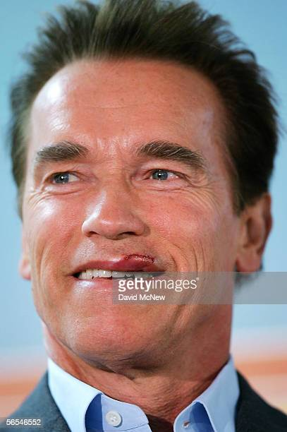 California Governor Arnold Schwarzenegger smiles as he speaks carefully with 15 stitches in his lip from a weekend motorcycle accident, as he visits...