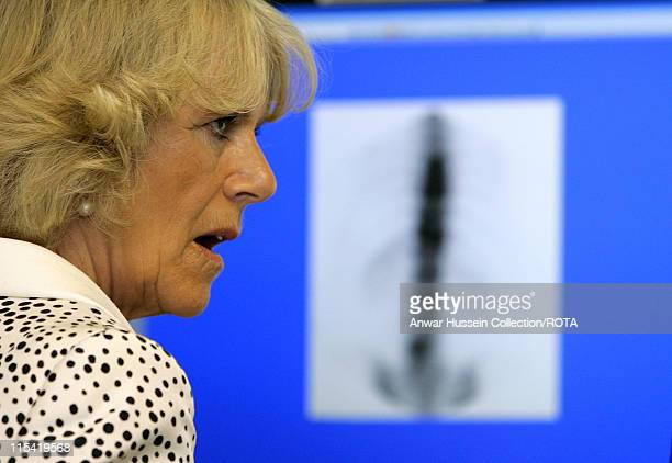 CamillaDuchess of Cornwall President of the National Osteoporosis Society studies a scan during a visit to Guy's Hospital on July 12 2006 The Duchess...