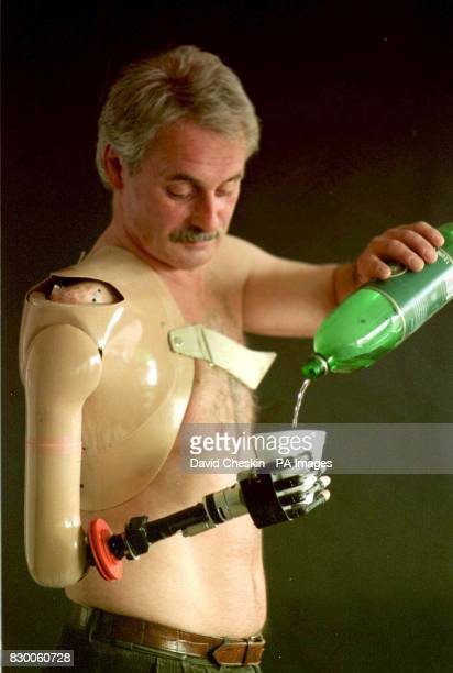 Campbell Aird a hotelier from Dumfries and Galloway who has become the first person in the world to use a bionic arm The limb has been developed by...